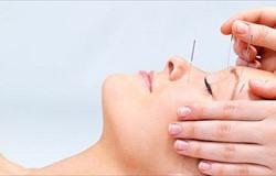 Безоперационная подтяжка кожи лица и шеи